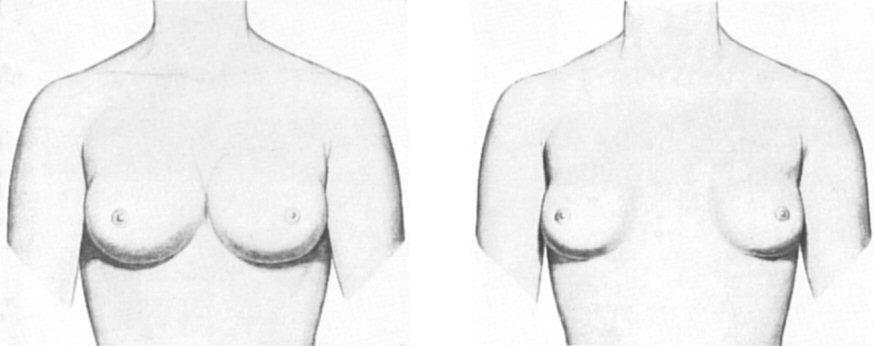Vagina body painting